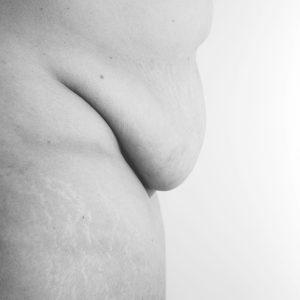 Nackte Bilder für mehr Selbstliebe